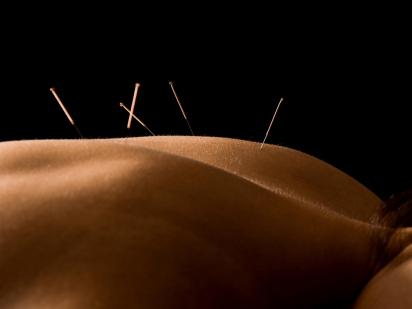 femme durant une séance d'acupuncture